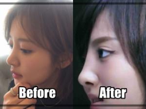 夏菜の鼻,写真