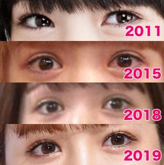 藤田ニコルの目の整形画像,二重幅と涙袋